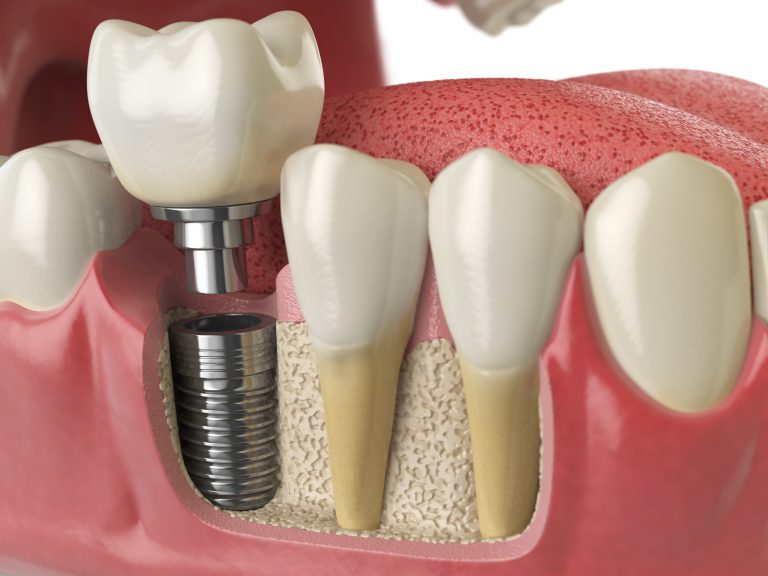 3d image of dental implant