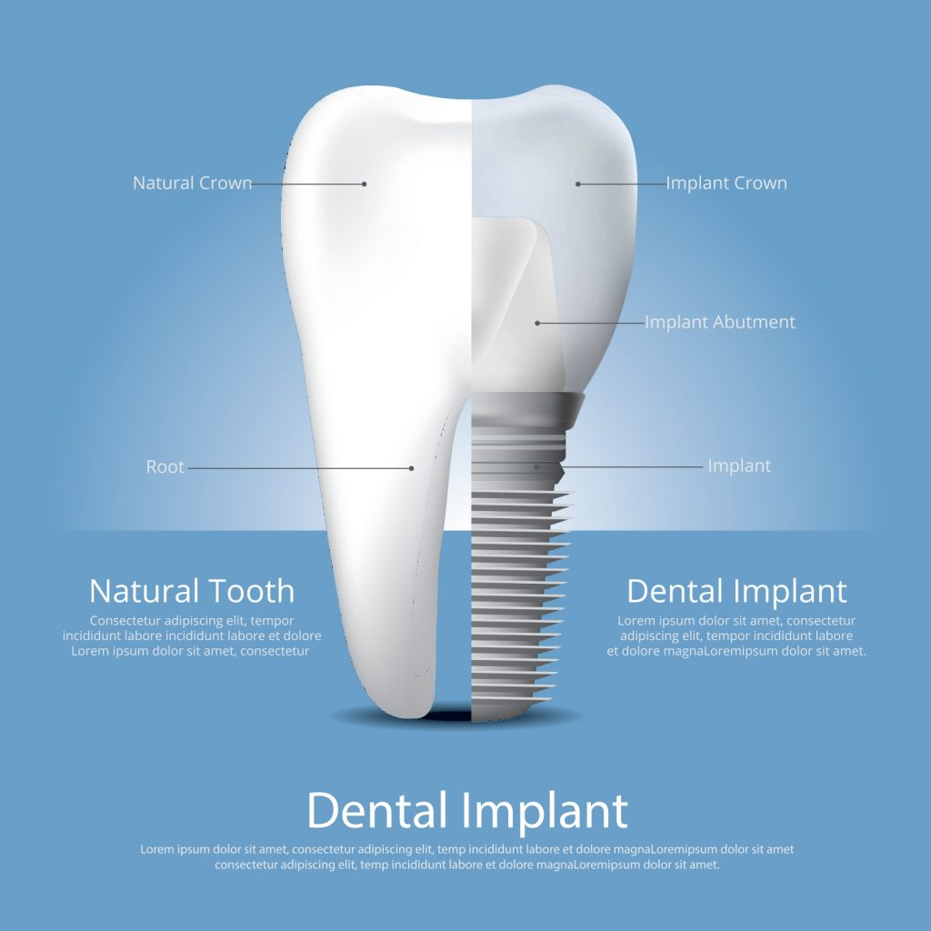 Significance of Dental Implant in Elderly Patients_page-0001