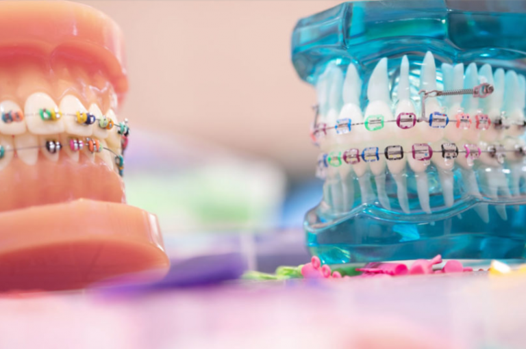 Types of orthodontic appliances